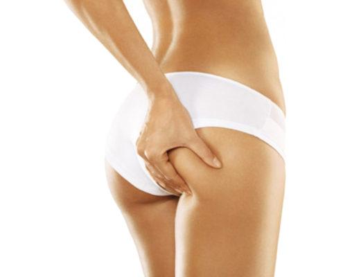mesoterapia corporal Puerto de sagunto
